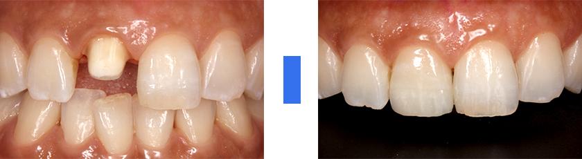 天然歯と調和のとれる前歯にしたい