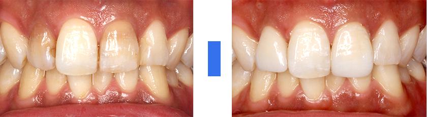 失活歯(神経がない歯)の色が気になる