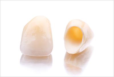 セラミックスによる審美歯科治療
