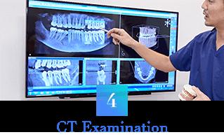 歯科用CTによる精密・確実な診査診断