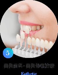 審美歯科・審美修復治療